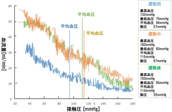 Palmens(接触圧を次第に下げたときにおける血流量信号の変化).png