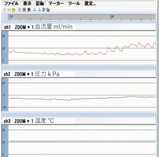 Palmens(接触圧、温度、血流量の同時測定例).png